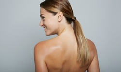 One or Three Laser Scar-Removal Sessions at NeoVision (Up to 82% Off)