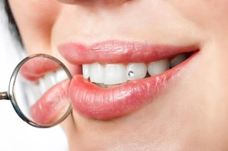 Up to 50% Off on Teeth Whitening - Traditional at House of Elegance Beauty Bar
