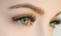 3- or 5-ml Latisse Eyelash Growth Kit with Online Consultation and Prescription from 4Juliet (Up to 41% Off)