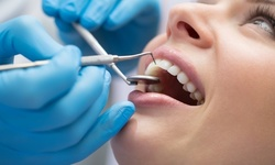 Up to 33% Off on Root Canal Treatment at Rapha Dental LLC