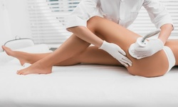 One, Two, or Four Lipo Sculpt Lite Treatments at BodyCon Spa (Up to 87% Off)