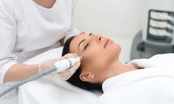 Diamond or Crystal Microdermabrasion w/ LED Therapy at Dr. Yuan Bariatric and Cosmetic Surgery (Up to 50% Off)