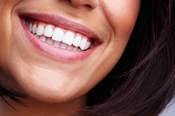 Up to 40% Off on Teeth Whitening - Traditional at Unicorn Beauty Bar