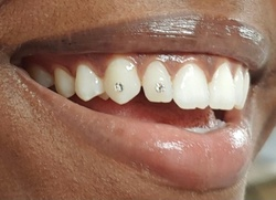 Up to 37% Off on Teeth Whitening - Traditional at Beauty By Jonte