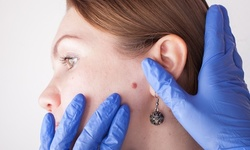 Skin Tag Removal for One or Three Spots at The Holistic Bar (Up to 36% Off)