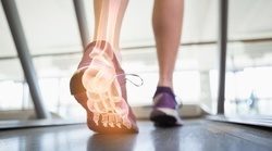 Up to 56% Off on Medical Foot Care at Dr. Bryan Kentner