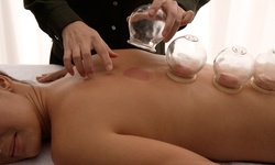 One, Three, or Five Cupping-Therapy Sessions at Les Acupuncture & Bodywork (Up to 35% Off)