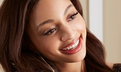 Up to 37% Off on Teeth Whitening - In-Office - Non-Branded at Glam-Ish Teeth Whitening & More