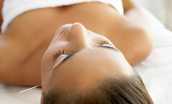 Up to 66% Off on Acupuncture Services at Bon Acupuncture(경희대 출신 한방전문의 본한의원)