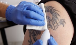 Three Tattoo-Removal Sessions at Forever MedSpa & Wellness Center (Up to 40% Off). Three Options Available.
