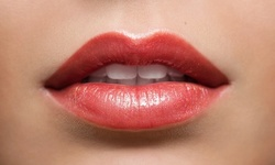 Up to 40% Off on Injection - Dermal Filler at TRU Form Skin Lab