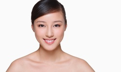Up to 80% Off on Dental Checkup (Cleaning, X-Ray, Exam) at United Dental Group Washington DC