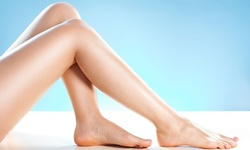 Up to 50% Off on Spider Vein Removal at Dime Medical Artistry