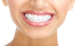 Up to 84% Off on Dental Checkup (Cleaning, X-Ray, Exam) at Patuxent River Dental Care