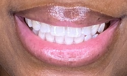 Up to 50% Off on Teeth Whitening - In-Office - Branded (Zoom, Brite Smile) at Charm'd Toothology
