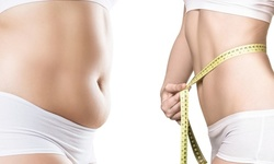 Up to 33% Off on Fat / Cellulite Reduction - Non-Branded at APMI Wellness Center