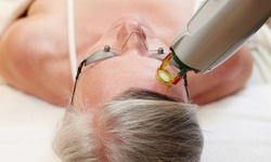 Up to 71% Off on Facial - Photo at Med Spa Studios