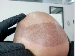 Up to 55% Off on Hair Restoration - Non-Surgical at Skalp ink micropigmentation