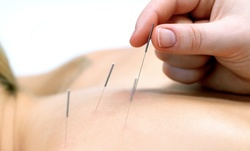Up to 9% Off on Acupuncture at Dawson Integrative Medical Center