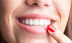 Up to 40% Off on Teeth Whitening - Traditional at Raresourceful Smiles